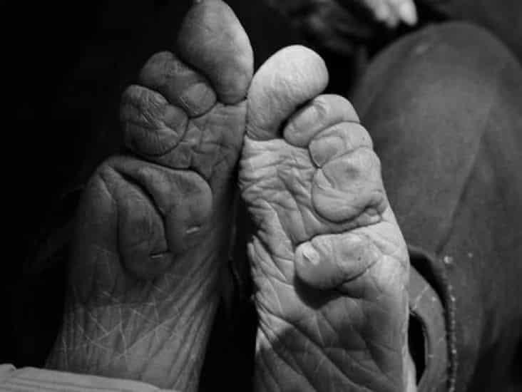 Pies de loto