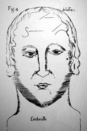 Johann Caspar Lavater. Estudio fisionomía. El imbécil